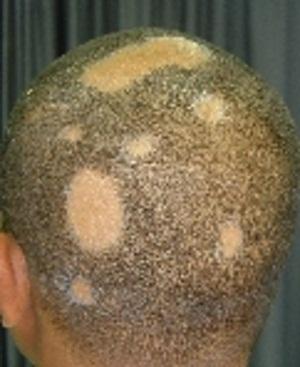 ریزش مو به صورت سکه ای