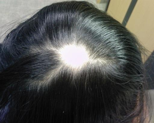درمان ریزش سکه ای ابرو